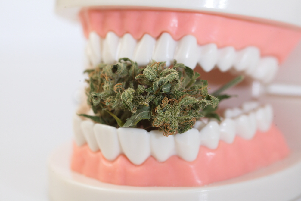 smoking weed after wisdom teeth removal